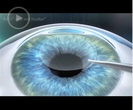 chirurgie des yeux. Black Bedroom Furniture Sets. Home Design Ideas