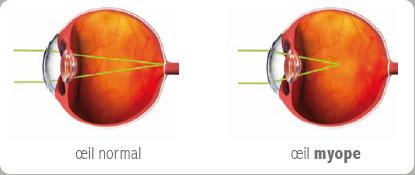laser myopie op ration chirurgie ophtalmologique expert vision docteur ivan zerdab. Black Bedroom Furniture Sets. Home Design Ideas